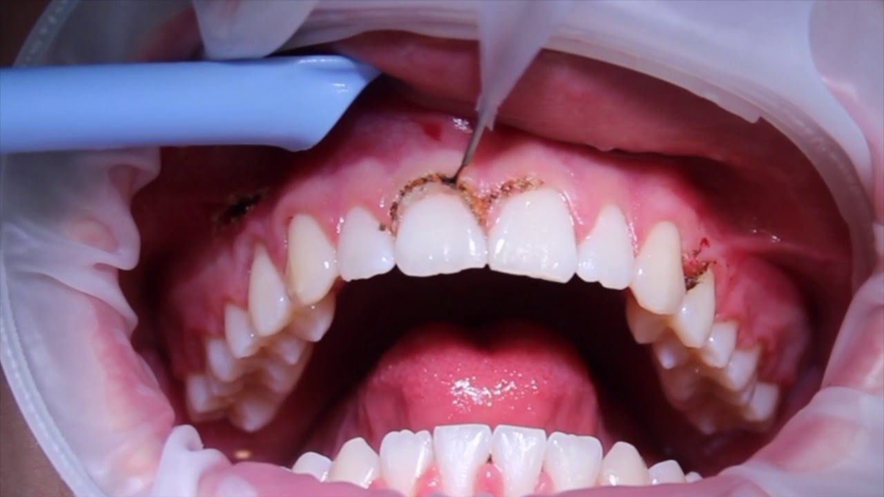 gingivectomie Laser