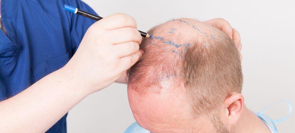 greffe-cheveux-turquie