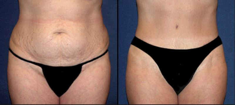 Mini abdominoplastie Tunisie