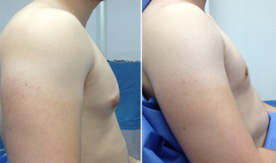 resultat gynecomastie