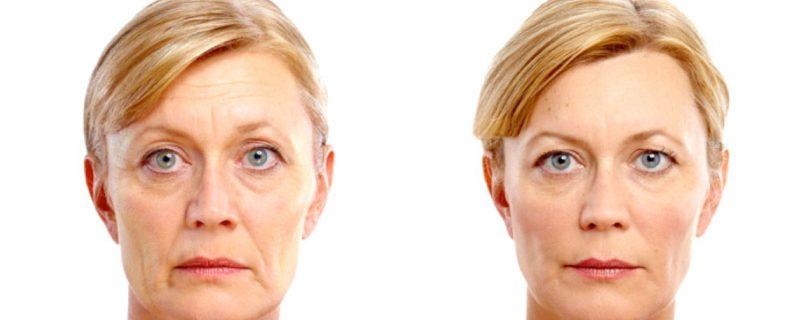 Résultat du lifting visage