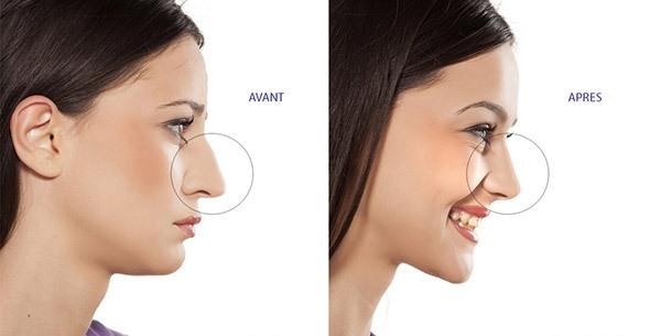 Résultat chirurgie nez