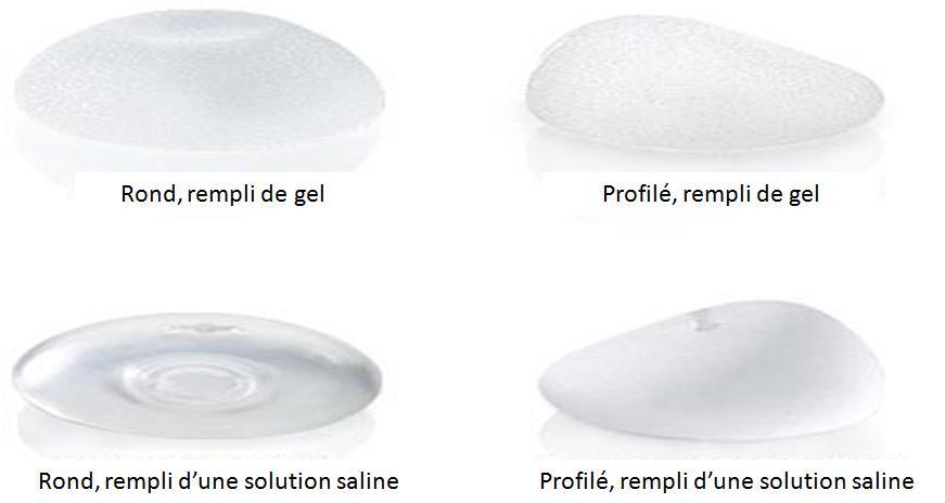 Types implants mammaire