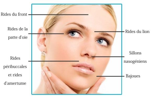 zones injection botox