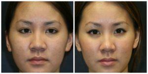 Avant et après rhinoplastie ethnique Turquie