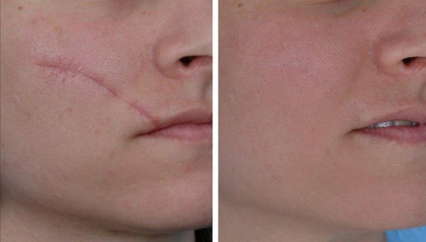 avant et après traitement cicatrices