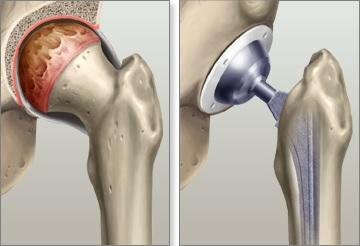 arthroplastie de la hanche