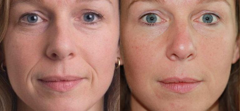 Lipofilling visage avant et après