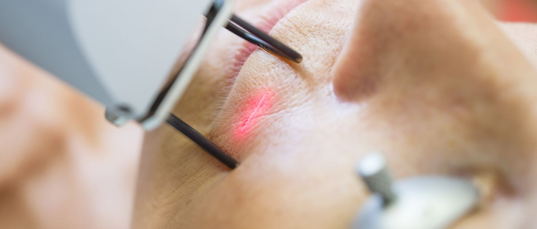 laser vasculaire Tunisie