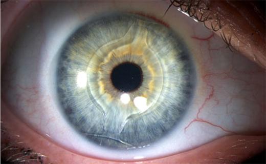 lentille intraoculaire