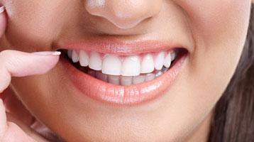 dentisterie esthetique