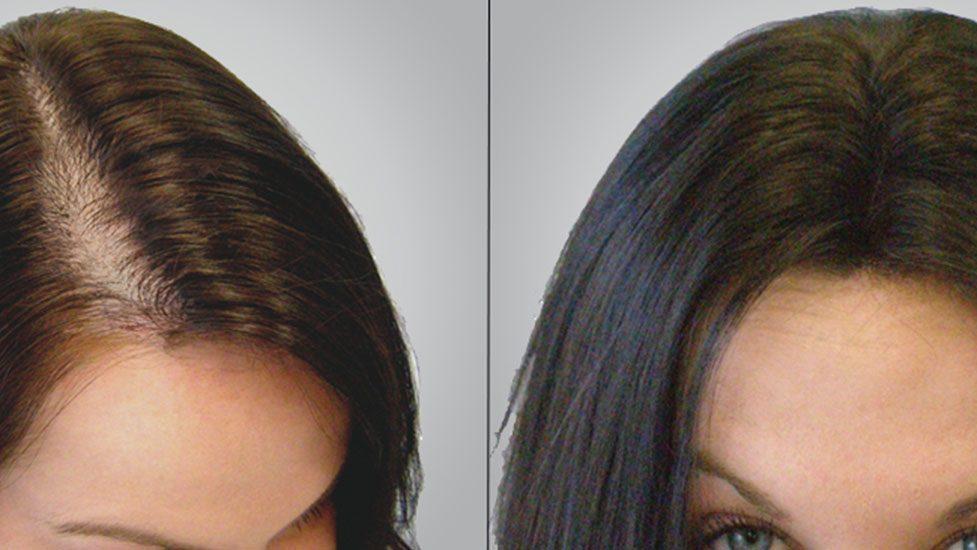 greffe-de-cheveux-femme-Turquie