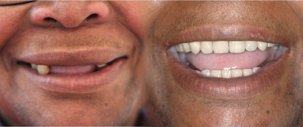 resultat-all-on-4-implant-dentaire