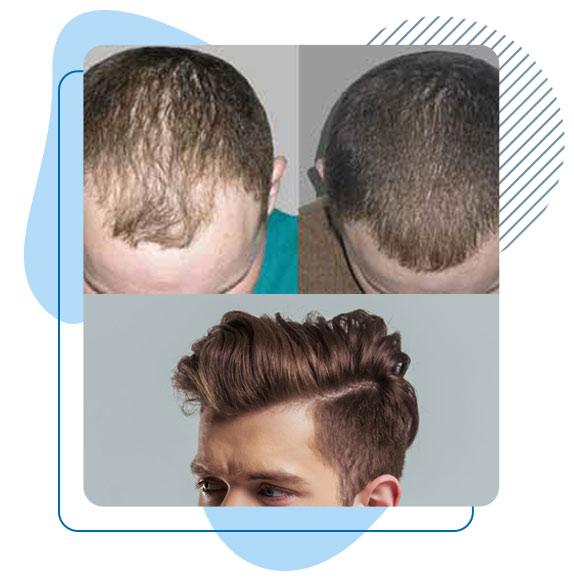 Avant et après Greffe cheveux