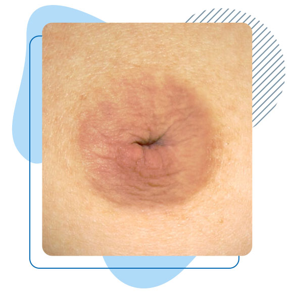 chirurgie-correction-mamelons-ombiliques-inverses