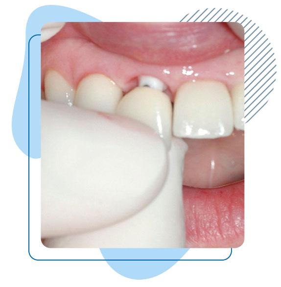 implant-dentaire-Turquie