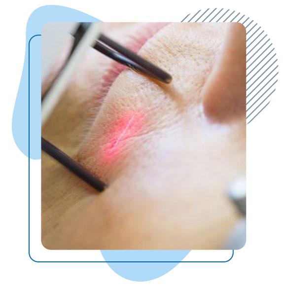 laser-vasculaire-Turquie