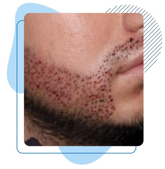 resultat-greffe-de-barbe-turquie
