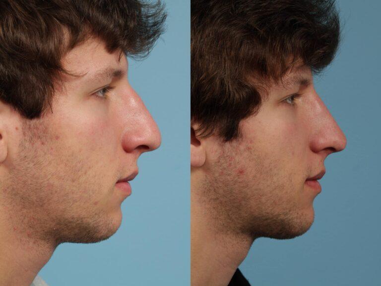 rhinoplastie-homme avant apres turquie