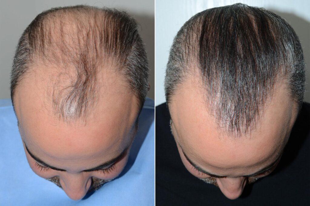 resultat-greffe-cheveux-turquie