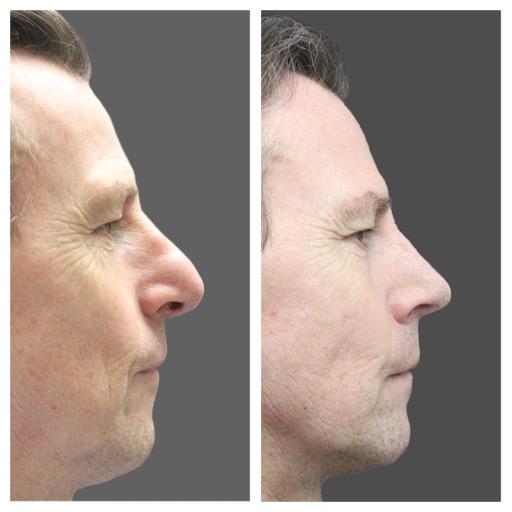 resultat-rhinoplastie-ultrasonique