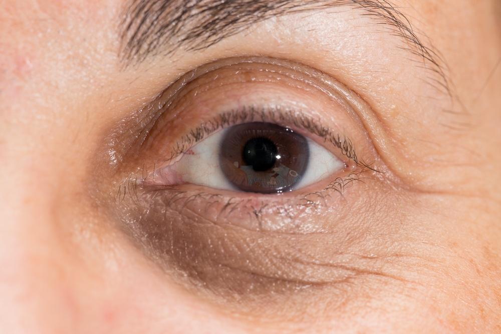 cernes-sous-yeux