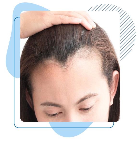 prix-greffe-cheveux-longs-turquie