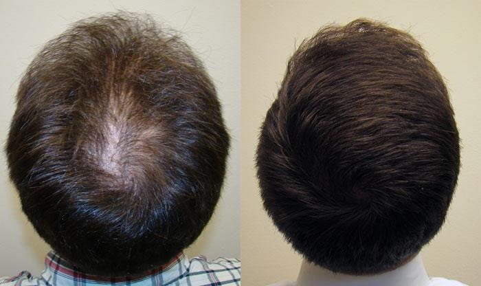 resultat-greffe-cheveux-longs