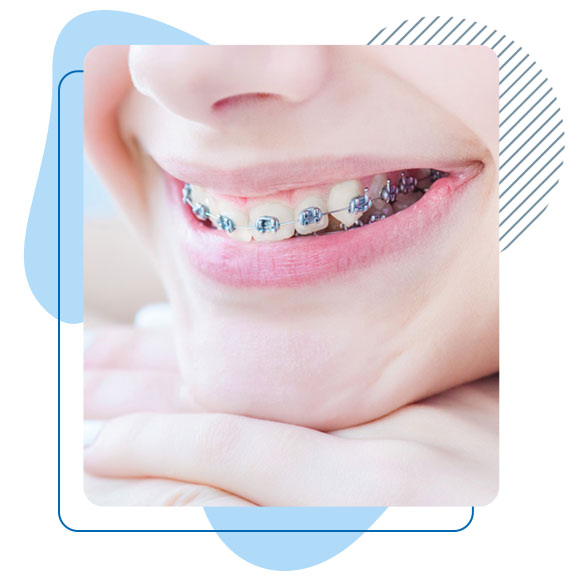 orthodontie-turquie